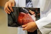 Mổ bỏ khối u 28 kg dính liền với buồng trứng