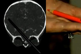 Sống sót thần kỳ sau khi bút chì xuyên não