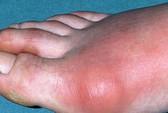 Triển vọng trị bệnh gout