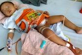 Điều trị miễn phí cho bé bị cắt nhầm bàng quang