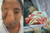 Bác sĩ McKinnon ra tay cứu 2 bệnh nhân bị biến dạng mặt