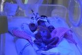 Bé sơ sinh suýt bị chôn sống đã vào lồng kính