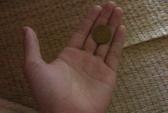 Đồng xu mắc trong thực quản bé trai 1 năm