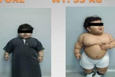Bé trai 2 tuổi phẫu thuật cắt dạ dày để giảm cân