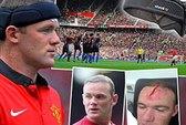 Khám phá chiếc băng đầu đặc biệt của Rooney