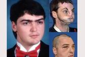 Ca phẫu thuật ghép mặt lớn nhất thế giới