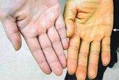 Kon Tum chống bệnh vàng da