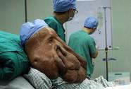 Người đàn ông có khối u nặng 17,5 kg trên mặt