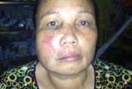 Tổ trưởng tổ an ninh thôn đánh 1 phụ nữ thâm tím mặt