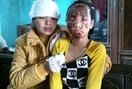 Khởi tố vụ nổ đài cát- xét tặng sinh nhật làm 3 người thương vong