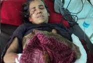 Người phụ nữ dùng liềm và rìu giết chết báo