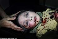 Khuôn mặt rớm máu ám ảnh thế giới