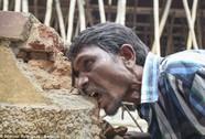 Người đàn ông mỗi ngày phải ăn 3 kg sỏi, đá