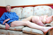 """Cựu nhân viên NASA khổ sở vì chiếc """"chân voi"""""""