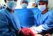 Bóc tách khối u ngực nặng 4,5 kg