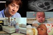 """Sao phim """"Truyền thuyết Jumong"""" xúc động kể về con sinh ba"""