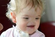 Xúc động với nụ cười của bé gái không có mũi