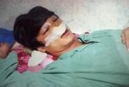 Vụ học sinh lớp 11 tố CSGT đánh vỡ xương mũi: Do học sinh tự va vào