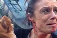 Bất chấp đổ máu vì cứu chó cưng