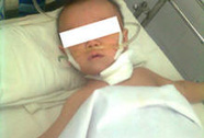 Bé trai 8 tháng tuổi nuốt mảnh kim loại có gắn nhựa