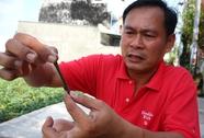 Con đỉa dài gần 20 cm sống 1 tháng trong mũi thanh niên