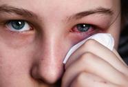 Phòng bệnh đau mắt đỏ