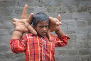 Xót xa cậu bé có đôi bàn tay khổng lồ