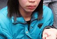 Xử lý việc công an đánh nữ sinh gãy răng