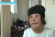 """""""Thảm họa dao kéo"""" xứ Hàn ngại ra đường"""