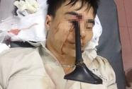 Cầm ô đi xe máy, thanh niên bị cán gương đâm xuyên mắt