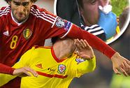 Fellaini giật chỏ sao Liverpool chảy máu mũi