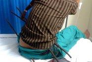 Thiếu nữ bị 3 thanh sắt đâm xuyên người