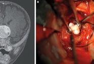 Chuyện hy hữu: Bé trai có răng mọc trong khối u não