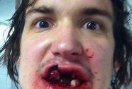 """Mất 10 chiếc răng vì """"ăn"""" quả bóng!"""