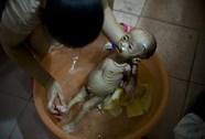 Bé gái mắc bệnh lạ trông như người ngoài hành tinh