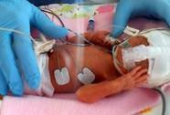 Bé sơ sinh 24 tuần, nặng 538 g