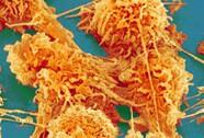 Thuốc tiêu diệt tế bào ung thư tiềm tàng