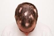 Phát hiện cơ chế chữa rụng tóc mới