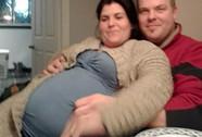 Người phụ nữ mắc hội chứng mang thai giả hiếm gặp