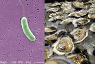 Cảnh báo tử vong do vi khuẩn ăn thịt người tắm biển