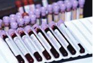 Phát hiện bệnh Parkinson bằng xét nghiệm máu