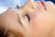 Châm cứu trị một số bệnh da liễu