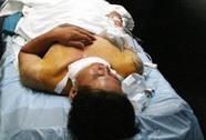 Một người chết do lưỡi cưa sắt gãy văng trúng cổ
