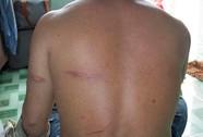 Bị đánh tét đầu vì từ chối ngồi ghế bãi biển