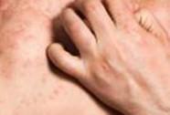 Bệnh chàm làm tăng nguy cơ bệnh tim, đột quỵ