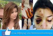 Tài phiệt Campuchia đánh đập nữ diễn viên trong nhà hàng