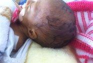 Bức xúc với kết luận vụ vết khâu trên đầu bé sơ sinh
