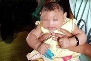 Bé gái 4 tháng tuổi ở Đắk Lắk bị dị tật do virus Zika