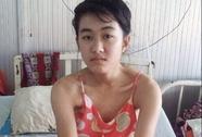 Bộ Y tế yêu cầu ngành y tế Đắk Lắk xin lỗi nữ sinh bị cưa chân