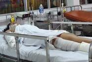 TP HCM: Tưới xăng đốt bạn gái vì bị đòi chia tay